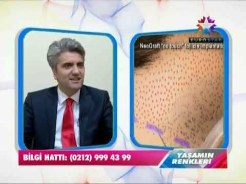 Saç Ekimi-Doç.Dr.Hayati Akbaş - EUROSTAR