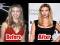 Transformation Ivanka Trump Plastic Surgery Before And After 2017
