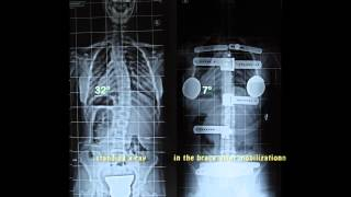 Chinesiterapia della Scoliosi Metodo Torrusio - Scoliosis kinesitherapy