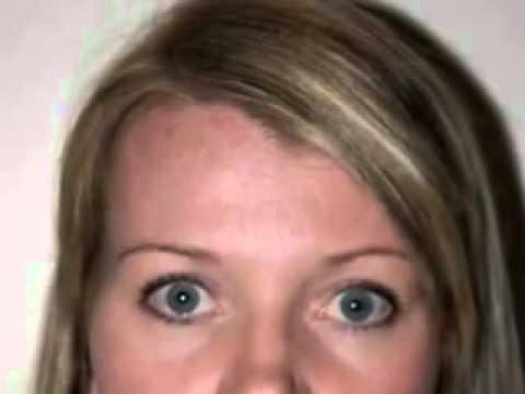 Glycolic Acid Acne Scar Treatment