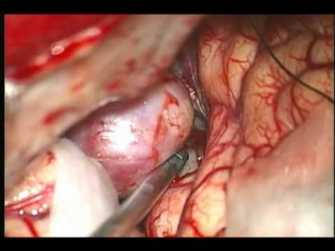 brain aneurysm clipping Music Videos