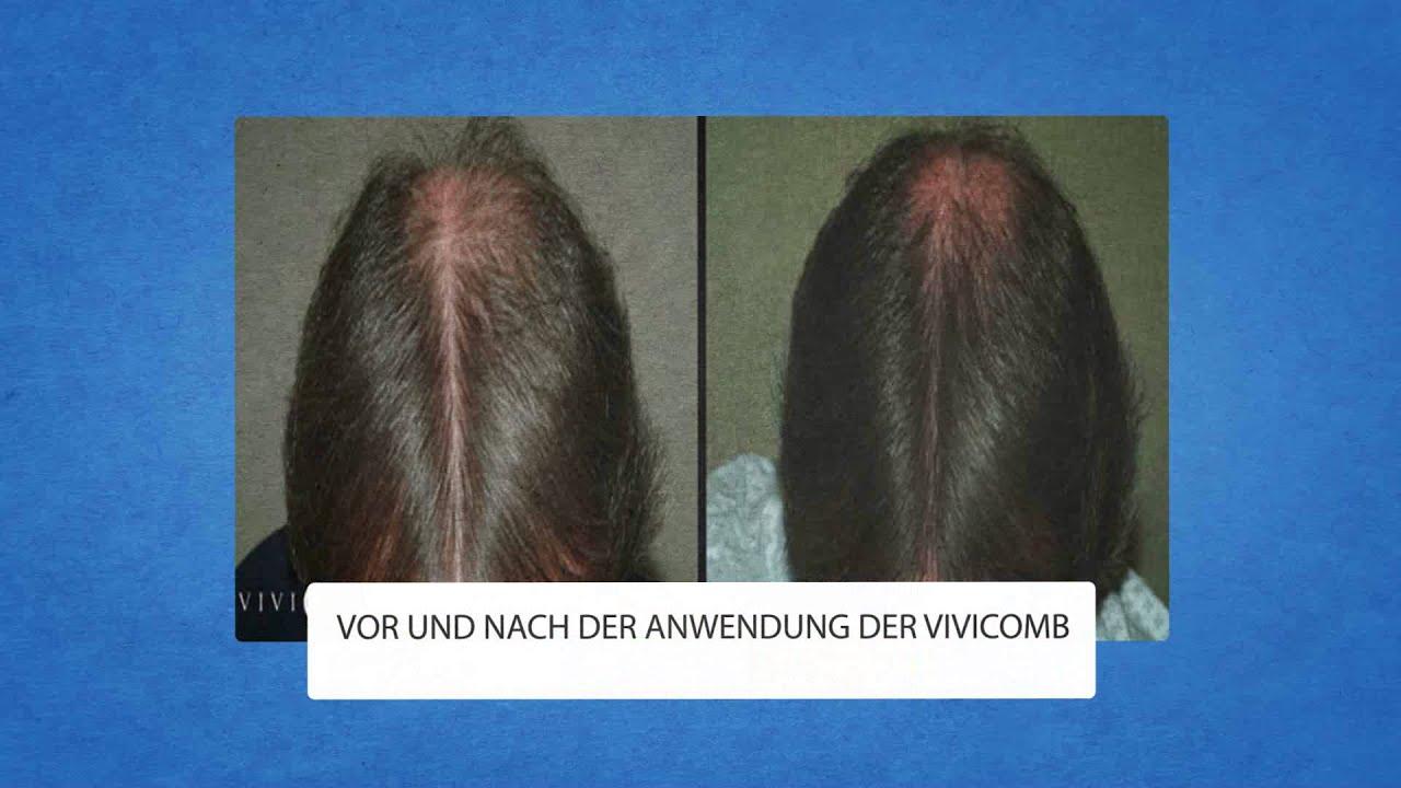 Der schwarze Pfeffer beim Haarausfall