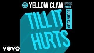 download lagu Yellow Claw - Till It Hurts Boehm Remix / gratis