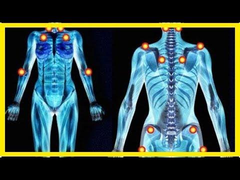 Fibromyalgie-Symptome mit Heilkräutern lindern