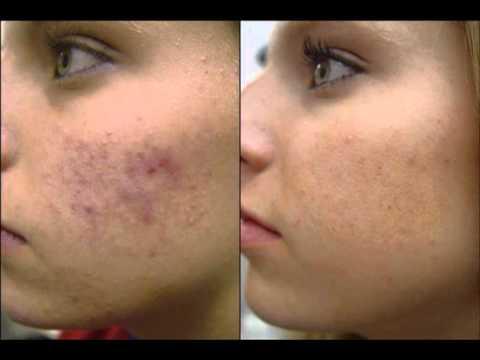 Cause of acne Review + Bonus