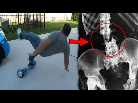 MY DAD BROKE HIS BACK RIDING A HOVERBOARD! - FAIL