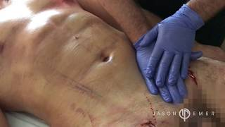 Lymphatic Massage After Liposuction