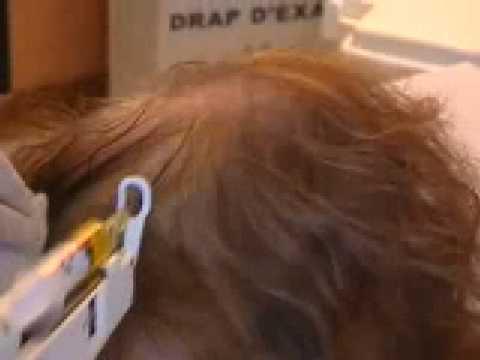 Le masque du pain noir pour les cheveux secs et fragiles