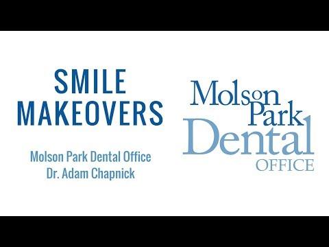 Smile Makeovers | Molson Park Dental Office | Barrie Dentist