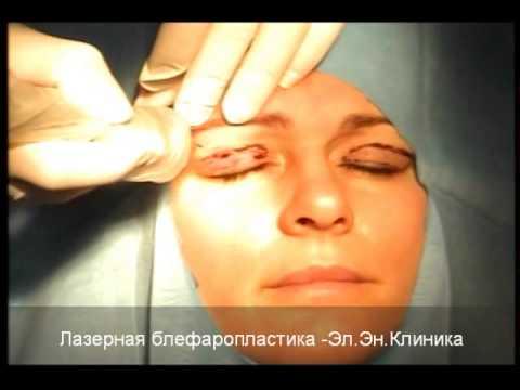 Лазерная блефаропластика век видео