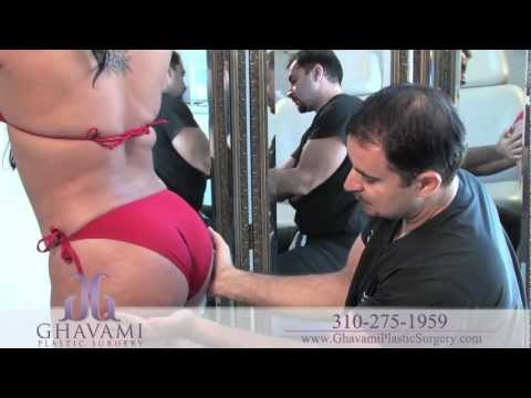 Brazilian Butt Lift by Fat Transfer in Beverly Hills | Dr Ashkan Ghavami
