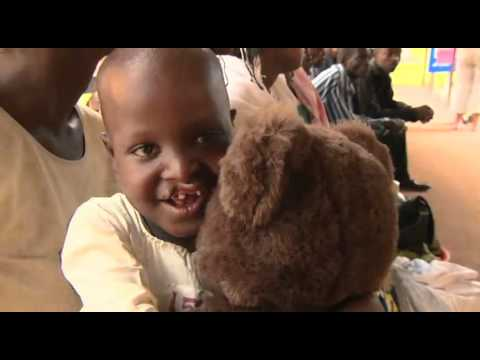 Operation Smile: Habimana's Story