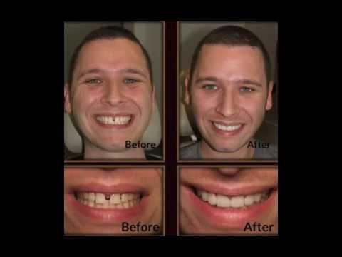 Ganji Dental Manhattan Beach & Lomita - Before & After Patient Photos, Dental Implants, Whitening