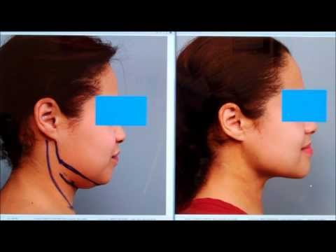 Chin SmartLipo. Neck Liposuction Case Study   Dr. Sterry