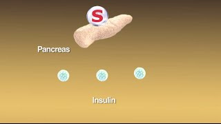 Sulfonylureas: What Are They and How Do They Work?
