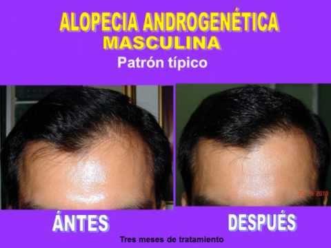 Alopecia androgenetica cura