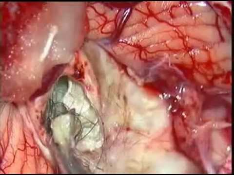 Brain tumor-CEREBELLAR DERMOID-microsurgical removal-dr suresh dugani