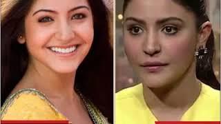 Bollywood Actresses Whose Plastic Surgeries Went Horribly Wrong   Dainik Bhaskar