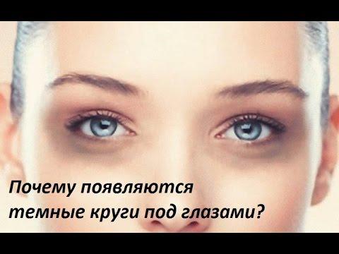 Почему синяки черные под глазами