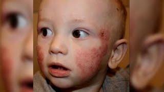 A quien el niño es enfermo de la psoriasis