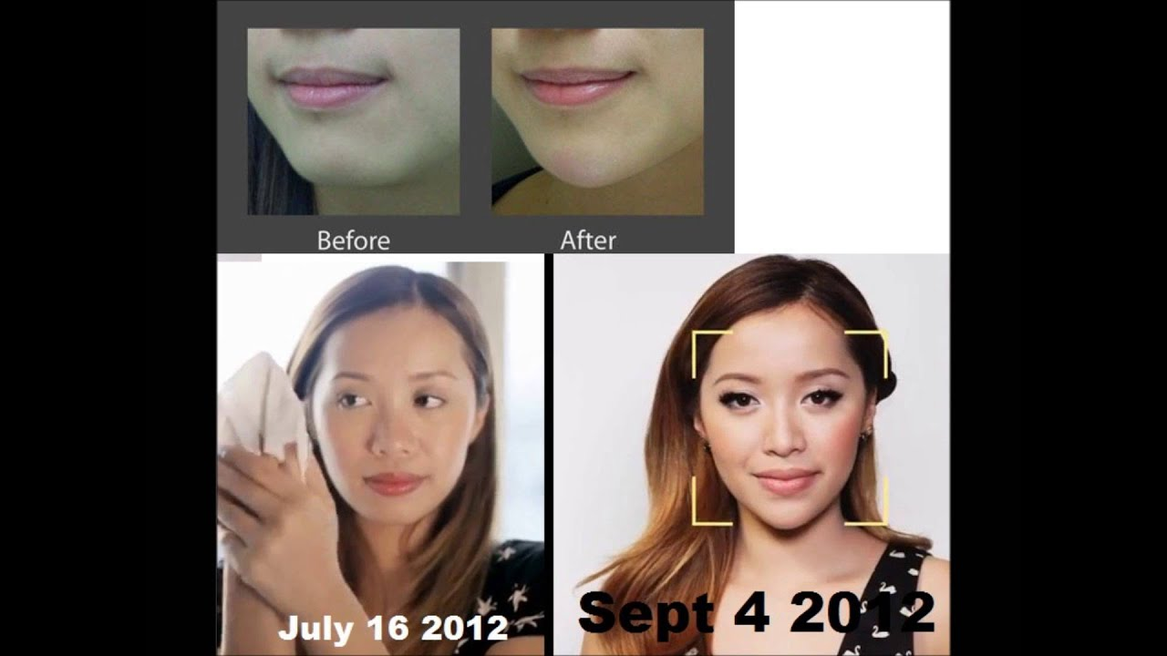 Michelle Phan plastic surgery? Proof - YouTube K Michelle Before And After Teeth