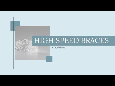 High Speed Braces