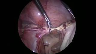 Adnexectomy in patient with uterine praegnancy. BiSect micro (ERBE)