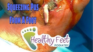 Squeezing pus out of a foot