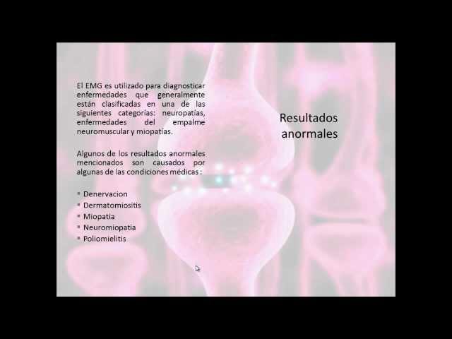 Exposicion de Electromiograma