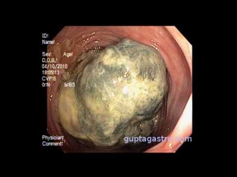 Live Leiomyosarcoma ( LMS ) inside human body - New York Leiomyosarcoma