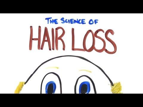 Chvilka s vědou: Příčiny plešatění