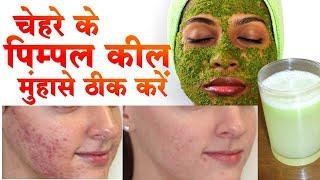 pimple ke gharelu upay 100% कामियाब केवल 7 दिन में जड़ से ख़त्म   how to remove pimples from face