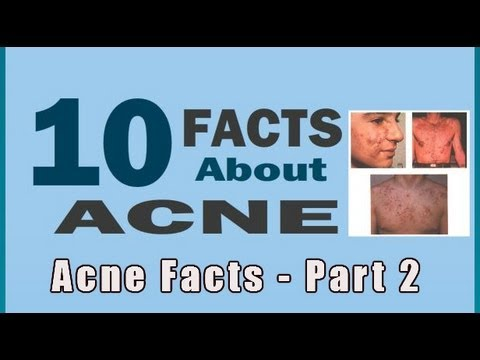 Acne Facts - Part 2 | Types Of Acne