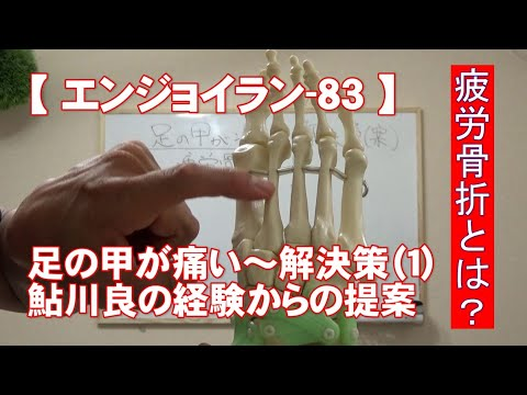 #83 足の甲が痛い 解決策 1/4/がんばらないで楽に長く走る【エンジョイラン】