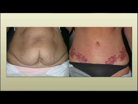 Woodlands Tummy Tuck