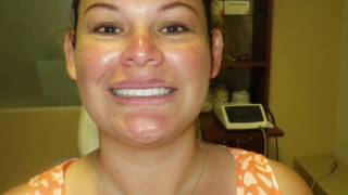 Cancun Cosmetic Dentistry  Before and After compilation!