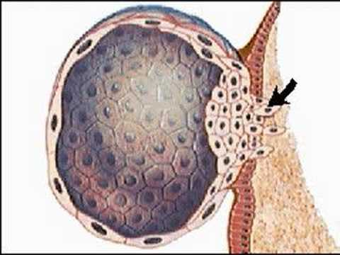How the Body Works : Implantation of the Ovum