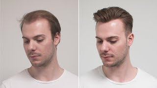 Drop Fade Sweep Back Hairstyle mit Haarsystem | Hair Transformation | Hairsystems Heydecke
