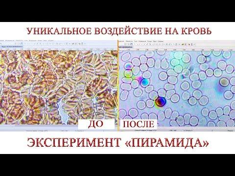 Уникальное воздействие на кровь. Эксперимент ПИРАМИДА