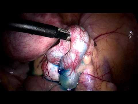 Retroverted Tilted Uterus