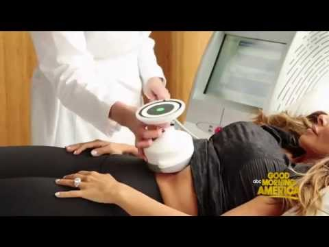 Melt fat the cool way with UltraShape at LifeScape Premiere