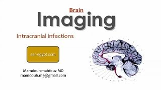 Imaging of Intracranial Infections - DRE 9 - Dr Mamdouh Mahfouz