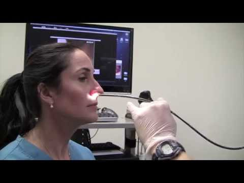 Esophagoscopy Without Sedation (Trans-Nasal Esophagoscopy; Esophagus Exam Endoscopy)