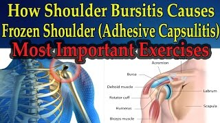 How Shoulder Bursitis Causes Frozen Shoulder (MOST IMPORTANT EXERCISES) - Dr Mandell