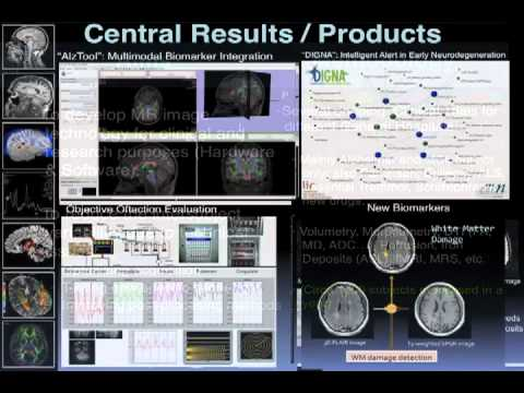 MRI biomarkers in neurodegenerative diseases and neurological disorders - Juan Antonio Hernandez