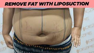 Abdomen & Back Liposuction Surgery For Female |  Best Cosmetic Surgeon Dr. Prashant Yadav