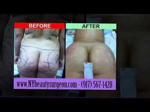 Doctor Shahine, Liposuction, Brazilian Butt Lift before and after photos