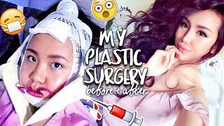 MY PLASTIC SURGERY EXPERIENCE IN KOREA | BEFORE + AFTER | V-LINE, NOSE JOB, LIP FILLERS at Banobagi