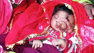 Video: Baby born with an 'elephant trunk' worshiped as Hindu God in India