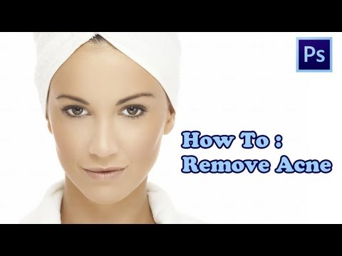 Photoshop: How to Remove Acne from skin